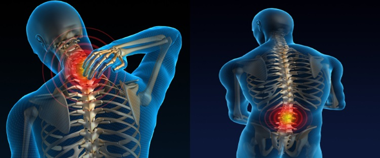 image of back and neck pain with radio frequency